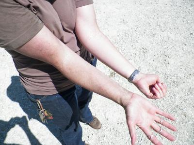 Figure. Saprophytic black mold covered my arm, clothing and face while rating corn plots.